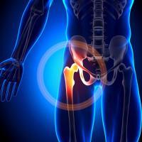 Prothese du genou