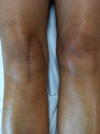 Cicatrice pose de prothese du genou