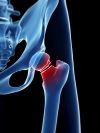 Ostéoporose, fracture et opération