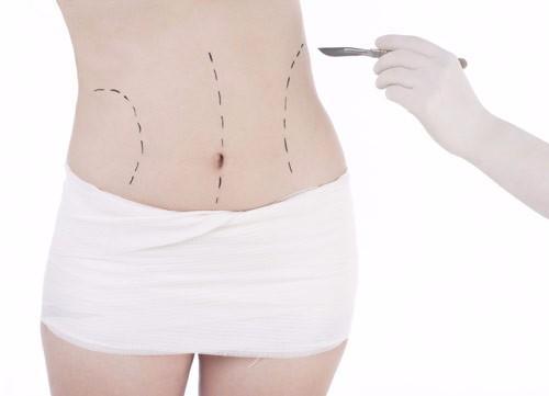 Operation et chirurgie de la hanche